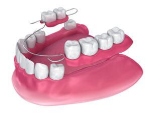 Partials and dentures-new