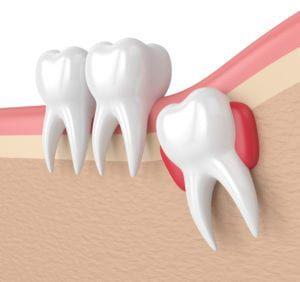Wisdom teeth extractions
