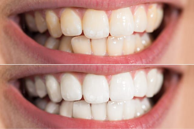 before and after teeth whitening hopmeadow dental