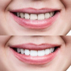 hopmeadow dental teeth whitening before after